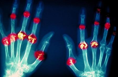 Ревматоидный артрит. Диагноз