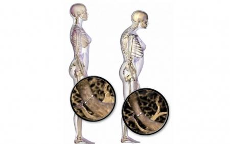 Биохимические маркеры формирования и резорбции кости