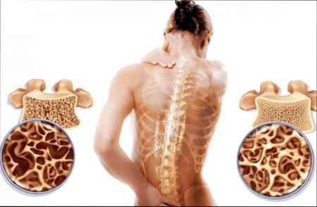 Остеопороз: современное состояние проблемы