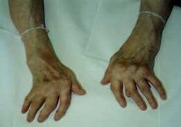 Что такое ревматоидный артрит?