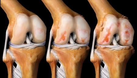 Обновление клинических рекомендаций по лечению больных остеоартритом 2019 года